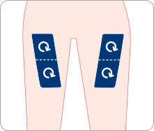 Image of various thigh injection sites