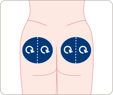 Image of various buttock injection sites