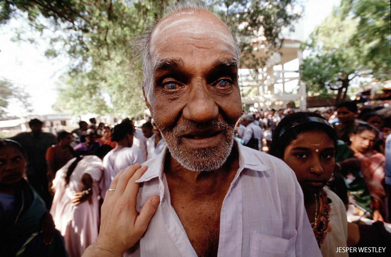Man with cataracts in Aravind screening camp, India